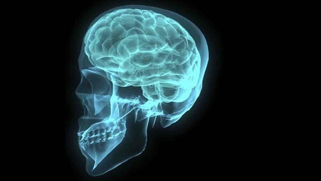 brain_12776