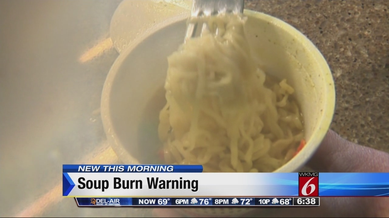 Ramen Noodle Burns Sending Children To Er