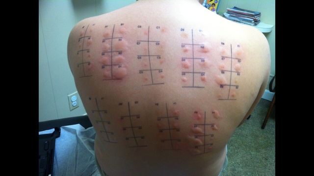 allergy test_21891474