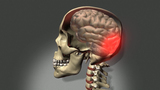 Treat concussion with squirt of medicine up nose?