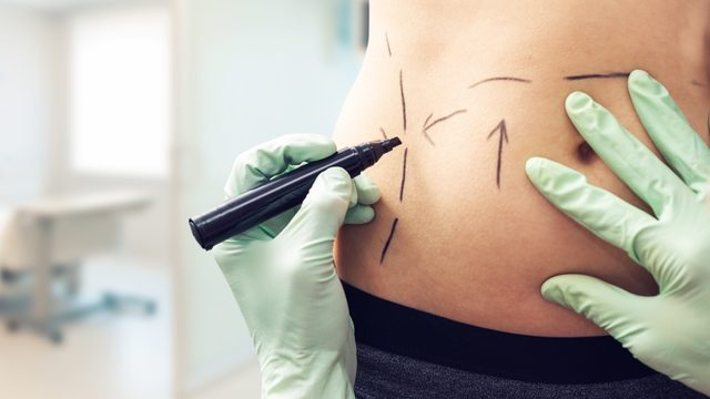 Florida may boost regulation for cosmetic surgery clinics