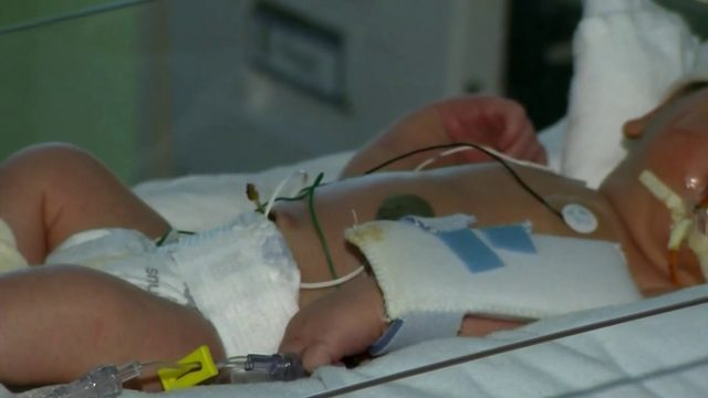 Doctors using iPads to monitor babies