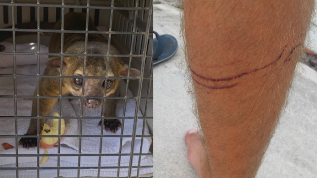 Pictures show aftermath of kinkajou attack on Florida man