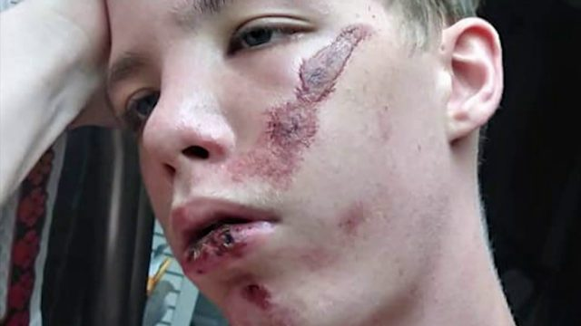 Rockledge police investigate if 15-year-old was jumped by classmates