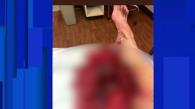 200-pound boar rips Florida trapper's leg open